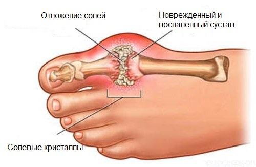 otlozhenie-solej-v-sustavax-4